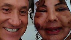 Žena roky trpela, falošný chirurg jej do tváre vpichol cement a lepidlo. Dnes je opäť šťastná!