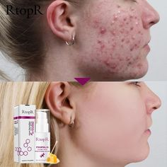 Brand Name: RtopR Formulation: Lotion Feature: Acne Treatment Gender: Unisex Country/Region of Manufacture: China Certification: AFO GZZZ: YGZWBZ Ingredient: Propolis Item Type: Face Serum Propolis, Acne Cream, Shrink Pores, Body Organs, How To Get Rid Of Acne, Face Serum, Skin Brightening, Acne Scars, Acne Treatment
