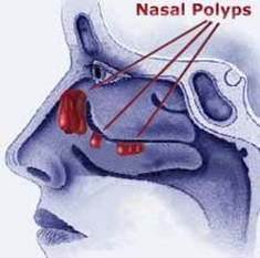 Nasal Polyps and Homeopathy : Disease Index, Ear, Nose and Throat : Hpathy.com