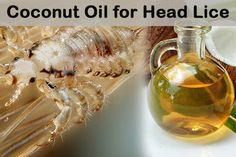 Whenever your child or anyone in your family get head lice then all your family members will suffer from it if it is not recognized earlier as they will get into everything and literally take over. Coconut oil is one of the natural and effective treatment that doesn't contain any harsh chemicals onto …