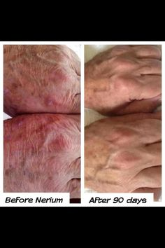 Nerium not just for your face!!Hands give away age often sooner than our faces. Men & women get results! All Before & After Pictures are taken by customers & no photoshop. Don't forget to take your picture. Get your own bottle from vanessafaithbanks.nerium.com :)