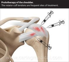 Alternative to Rotator Cuff Tear Surgery – The evidence for non-surgical options Alternative Health, Alternative Medicine, Rotator Cuff Injury Exercises, Shoulder Pain Exercises, Body Inflammation, Rotator Cuff Tear, Shoulder Surgery, Spine Health, Muscle Pain Relief