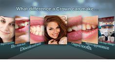 Vague Dental Surgery The Dentist Dental Implant Surgery, Nose Surgery, Oral Surgery, Cosmetic Dentistry Procedures, Teeth Whitening That Works, Dental Cosmetics, Dental Facts, Teeth Health