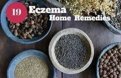 Eczema will lead your skin dry, itchy and red. In the end, it may blister. Learn more about 19 useful eczema natural treatments and remedies. Learn how to get rid of eczema and find the closest cure as you can get by discovering how to use essential oils Home Remedies For Eczema, Acne Remedies, Natural Home Remedies, Health Remedies, Allergy Remedies, Herbal Remedies, Get Rid Of Eczema, How To Get Rid Of Acne, Home Remedies