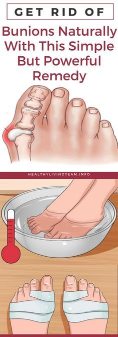 Get Rid of Bunions Naturally With This Simple But Powerful Remedy - Lo Que Necesita Saber Sobre La Salud Health Tips For Women, Health Advice, Health And Beauty, Health Care, Natural Treatments, Natural Remedies, Herbal Remedies, How To Stay Healthy, Healthy Tips