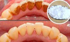 Voici un remède très efficace et facile pour se débarrasser du tartre et blanchir les dents en 4 étapes...