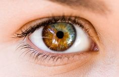 heterochromia iridum in anatomy heterochromia refers to a difference ...