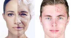 Não Perca!l Máscara para eliminar problemas no rosto! - # #acne #espinhas
