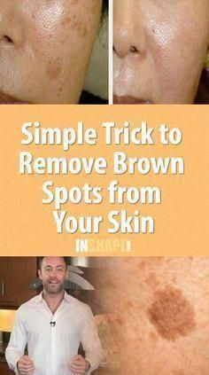There is nothing scary with having a few brown spots, also known as age spots, but things get really messy when these spots affect one's self-confidence. Age spots are more common on the face area, limbs, Sun Spots On Skin, Brown Spots On Hands, Spots On Legs, Brown Spots On Face, Sunspots On Face, Dark Skin, Brown Skin, Skin Care Tips, Skin Tips