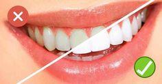 How to get whiter teeth fast? Get whiter teeth naturally. Get whiter teeth fast at home. How to make your teeth white? Home remedies for teeth whitening. Teeth Whitening Procedure, Teeth Whitening Remedies, Natural Teeth Whitening, Whitening Kit, Oral Health, Dental Health, Dental Care, Makeup