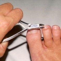 Pijn onder de nagel