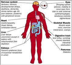 Mitochondrial disease Symptoms