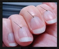 Missing Lunula ... NBNB Fascinating article saying that missing moons/orbs on fingernails can mean underactive thyroid and that B12 and Iodine levels should be checked. Also check for MTHFR gene mutation, can lead to B12 not being absorbed and folic acid deficiency hence babies not developing properly.