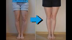 Surgeries for bow legs correction can cost several thousand dollars and a very serious procedure. Here is the best way to treat bow legs without Surgeries..