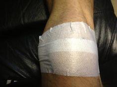 Common Knee Problems