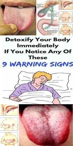 9 Often Overlooked Signs Your Body Is Full of Toxins (Plus How to Naturally Detox) - checkthis