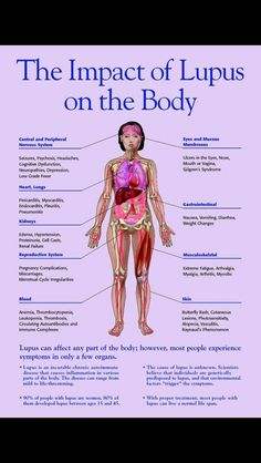 The impact of Lupus on the body.