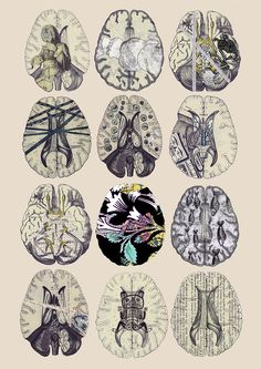 """""""One Flew Over the Cuckoo's Nest"""": Brainzzzz! Brain scan images depicting what is really on a person's mind. I particularly like the psychedelic one in the middle. Anatomy Art, Greys Anatomy, Brain Tattoo, Growth And Decay, Brain Art, Science Art, Neuroscience, Poster On, Art Inspo"""