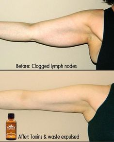 lymphatic drainage, edema, spider veins and varicose veins. This extract of ginger root and ginger oil relieves swelling and pain with its warming and anti Essential Oil For Swelling, Ginger Essential Oil, Essential Oils, Varicose Vein Remedy, Varicose Veins, Coronary Circulation, Lymphatic Drainage Massage, Detox Lymphatic System, Postural