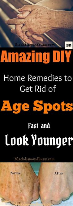 How to Get Rid of Age Spots on Face   7 DIY Home Remedies for dark age spots Removal.  Younger people probably have no idea what age spots are. However, as one grows older and the skin matures, the emergence of age spots on the skin is imminent. There is no particular age when age spots emerge for the first time; their appearance depends very much on one's habits and lifestyle.  For instance, staying in the sun for a long time may cause age spots to appear earlier, while having a healthy…