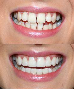 Gaps in front teeth Case 3