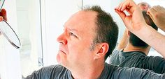 Whatever the reason for your hair loss is, In this article, we are going to give you tips that can help you to stop hair loss naturally and regrow hair. Hair Transplant Surgery, Best Hair Transplant, Stop Hair Loss, Prevent Hair Loss, Aesthetic Dermatology, Male Pattern Baldness, Regrow Hair, Hair Loss Women, Hair Loss Remedies