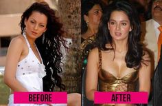 Indian Celebrities Before and After Plastic Surgery