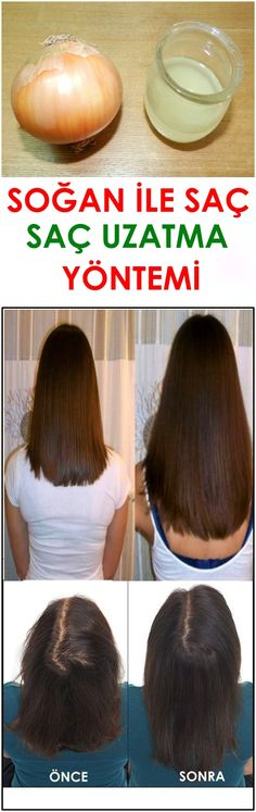 Onion Hair Extension Method – With # Hair # Onion # Extension # Direction … – Hairstyle Beauty Skin, Hair Beauty, Onion For Hair, Kids Photo Props, Make Up Anleitung, Natural Hair Styles, Long Hair Styles, Newborn Headbands, Hair Extensions