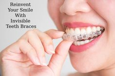 Braces stay in the back of mind of every person who feels that their teeth is not in a perfect shape or size. 𝐃𝐫. 𝐁𝐡𝐮𝐭𝐚𝐧𝐢 𝐃𝐞𝐧𝐭𝐚𝐥 𝐂𝐥𝐢𝐧𝐢𝐜 provides you Best Invisible Teeth Braces. To Book an Appointment! ☎️ +91 9810244656 #dentalclinicindelhi #bestdentalclinic #bestdentalclinicindelhi #dentalclinic #dentist #bestdentist #bestdentistindelhi #dentistindelhi #invisibleteethbraces #dentalcare #dentaltips #dentalcareworld #invisiblebraces #braces #coronavirus #coronavirusindia Dental Braces, Teeth Braces, Dental Implants, Dental Care, Dental Group, Invisalign, Teeth Alignment, Invisible Braces, Clear Aligners