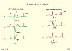 Bundle branch block is a block of the right or the left bundle branches. The signal is conducted first through the healthy branch and then it is distributed to the damaged side. This distribution takes more time than usual, so the QRS-complex is wider than normal (more than 0.12 s