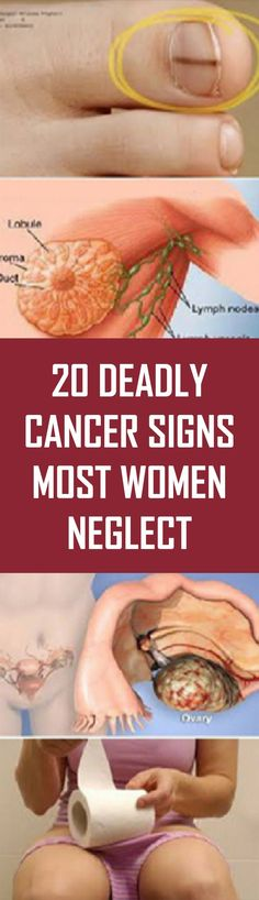 20 DEADLY CANCER SIGNS MOST WOMEN NEGLECT Cancer is one of the deadliest diseases in the world, which is expanding its foot expeditiously in the whole world. The most common reason for this recent upsurge is due to a very… Continue Reading → Liver Cancer, Breast Cancer, Healthy Women, Healthy Tips, Healthy Nutrition, Abdominal Bloating, Yoga Video, Fitness Motivation, Health