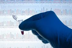 Clinics unroll genome tests for undiagnosed disorders Scientific Articles, Gene Therapy, Dna Test, Forensics, Science Education, Medical Care, Genetics, Cancer Awareness, Breast Cancer