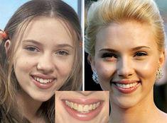 nose too - Celebrity Stil Scarlett Johansson, Dental Surgery, Dental Implants, Celebrity Smiles, Bronze Eye Makeup, Jennifer Lawrence Pics, Dental Cosmetics, Celebrities Before And After, Brunettes