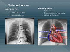 Resultado de imagen para boton aortico boton pulmonar