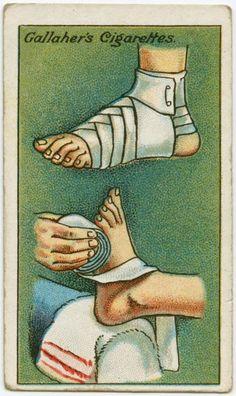cómo vendar un pie. Descansa el pie lesionado en la rodilla y comienza el vendaje conforme el dibujo inferior, desde el talón en espiral hasta la punta. Primero en un sentido y luego en el otro, trenzando la venda conforme a la imagen. Después asegura el extremo por encima del tobillo.