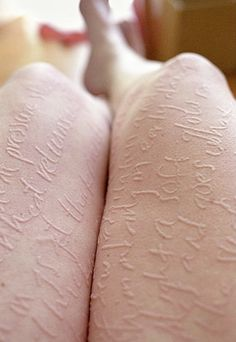 Dermographism is a skin disorder seen in 4–5% of the population and is one of the most common types of urticaria, in which the skin becomes raised and inflamed when stroked, scratched, rubbed, and sometimes even slapped.