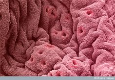 SEM of the lining of the uterus (endometrium) showing the openings of the uterine glands highlighted in pink.