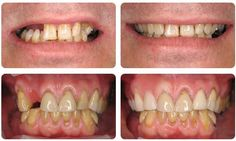 entures are removable appliances that can replace missing teeth and help restore your smile.