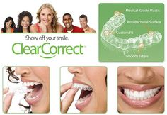 One of the many great services our office has to offer is Clear Correct orthodontic aligners. Unlike regular braces these aligners are clear removable and comfortable. The results are amazing! So if you want flawless teeth and a beautiful smile call our office today and set up an appointment to get started with Clear Correct! #clearcorrect #orthodontics #ortho #smile #teeth #happyteeth #dental #dentist #dentistry #newjersey #nj #straightteeth #beautifulsmiles by drlupsa_dds Our General…