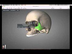 Facial Bones skull - YouTube