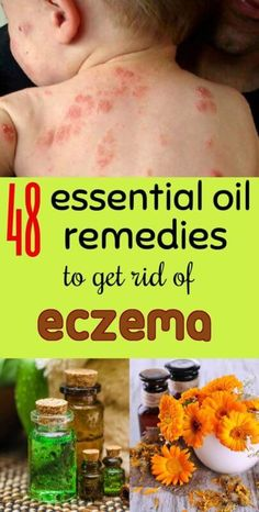 Skin Remedies essential-oil-remedies-for-eczema - Read about 48 effective essential oils for treating Eczema at HomeRemedyHacks. There are particular oils that effectively treat eczema. Essential Oils For Eczema, Essential Oil Blends, Peppermint Essential Oil Benefits, Antibacterial Essential Oils, Eczema Remedies, Natural Remedies, Nummular Eczema, Home Remedies For Eczema, Arthritis