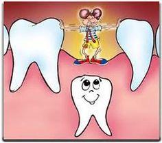 La pérdida de un diente de leche prematuramente es una señal de alarma. En estos casos es necesario valorar si es conveniente colocar un mantenedor de espacio para conservar el espacio de la arcada y permitir que el diente definitivo erupcione correctamente. Dental Kids, Dental Health, Business Card Design, Disney Characters, Cards, Teeth, Oral Health, Oral Hygiene, Orthodontics