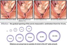 Bunch Ideas Of Dilation and Effacement Chart Lovely Dilation and Cervical Effacement Chart Ob Nursing, Maternity Nursing, Nursing Notes, Nursing Schools, Pregnancy Labor, Pregnancy Workout, Pregnancy Chart, Pregnancy Calculator, Pregnancy Stages
