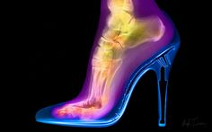 One of my earliest images is of my wife Artemi's leg, produced in 1998 when she was 29. It is a beautiful hand-coloured x-ray image of her tibia, fibula, ossa tarsi, metatarsals and phalanges, or simply titled 'foot in stiletto'. It is a modern scientific vision of a 'femme fatale' … the allure of the woman in a stiletto and the visual insight as to how the foot is indubitably contorted