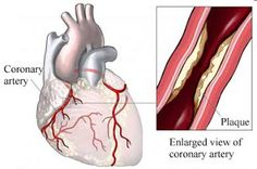 What is Prinzmetal angina? What cause it? What is coronary artery spasm? What are symptoms? Diagnosis? Treatment? Prognosis?