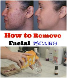 How to Get Rid of Acne Scars Fast and Naturally Overnight