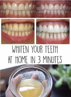 Whiten your teeth at home in 3 minutes