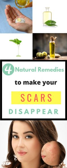 Natural Home Remedies for Effective Scar Removal to Support Effective Cell Growth Minimize Scar Tissue and Create Healthy Skin Old scars can be difficult to remove. But with these simple natural remedies, you can effectively remove all your old and new sc Natural Cold Remedies, Cold Home Remedies, Aloe Vera Hair Growth, Getting Rid Of Scars, Witch Hazel For Skin, Scar Remedies, Health Remedies, Acne Scar Removal, Aloe Vera Gel
