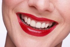 Drei FIT FOR FUN Redakteurinnen haben getestet, mit welchem Bleaching ihre Zähne wirklich weiß werden.