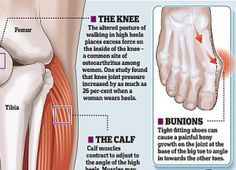 Learn more about what #highheels do to your feet!